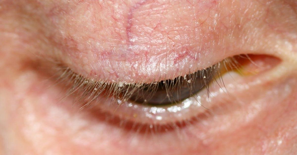 аллергический блефарит лечение
