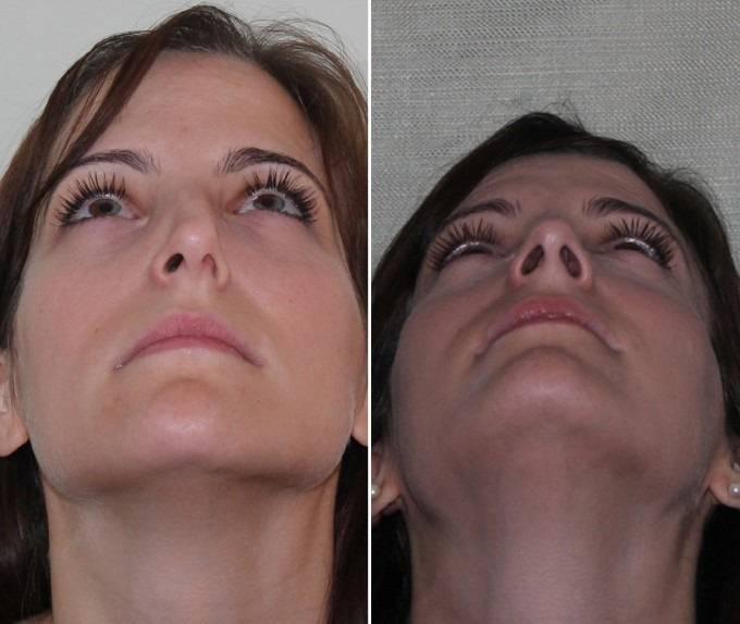 Искривление носовой перегородки