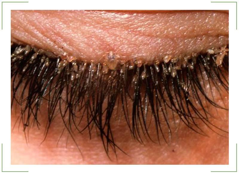 Как уберечь глаза от блефарита? симптомы, диагностика, лечение заболевания