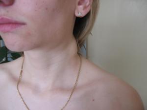 Что делать если воспалились лимфоузлы на шее при ангине и болят