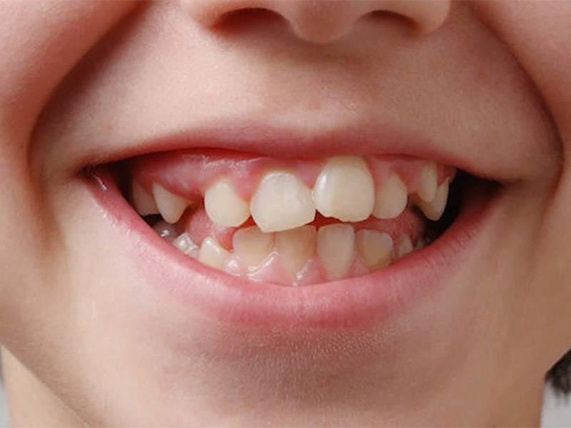 Ну-ка зубки, встаньте в ряд! как избежать проблем с прикусом у детей. причины неправильного прикуса у детей в 2020 году