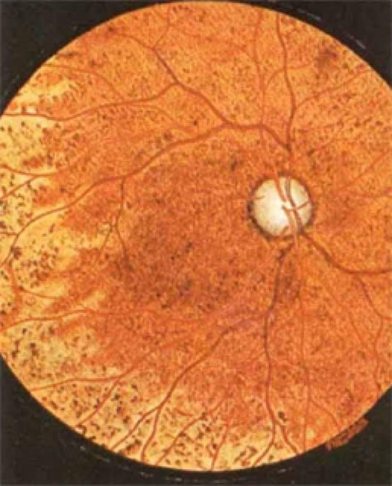 Хориоретинальное воспаление (ретинит, хориоретинит, центральная и периферическая хориоретинальная дистрофия, хориоидит)