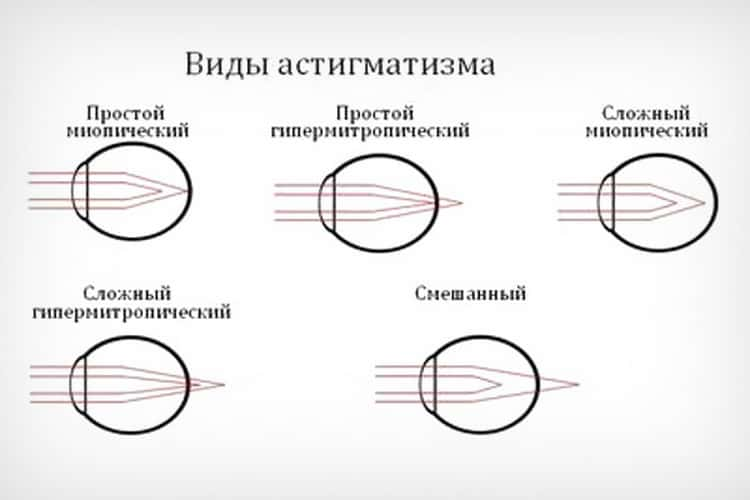 Миопический астигматизм: сложный, простой, обоих глаз