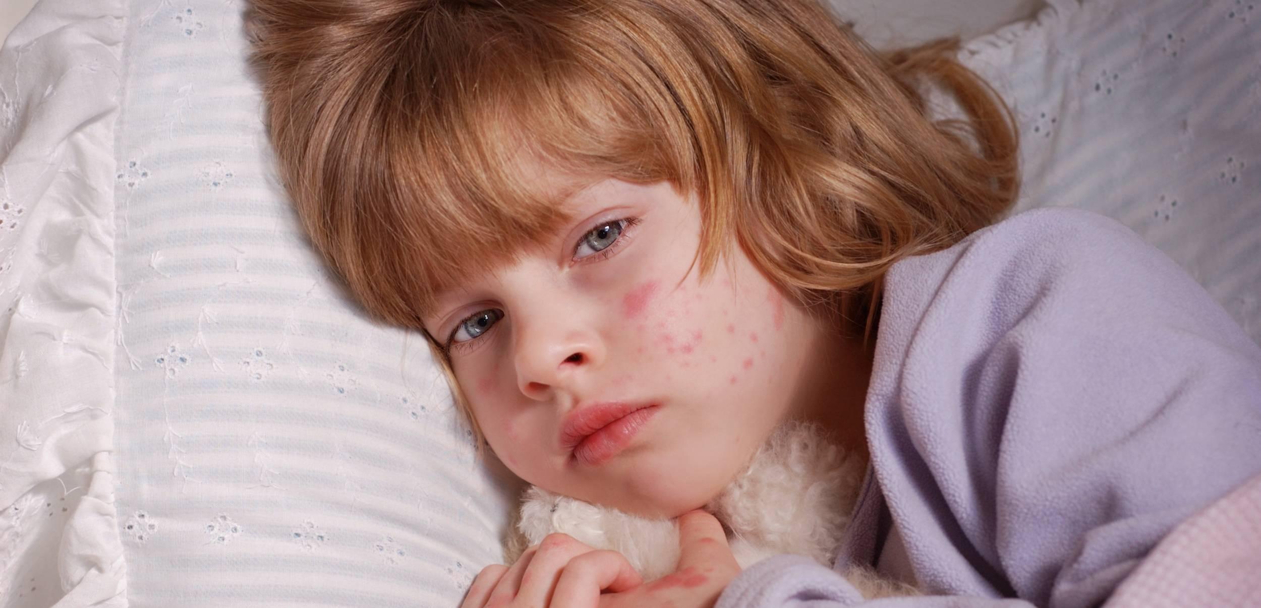 герпес на теле у детей чем лечить