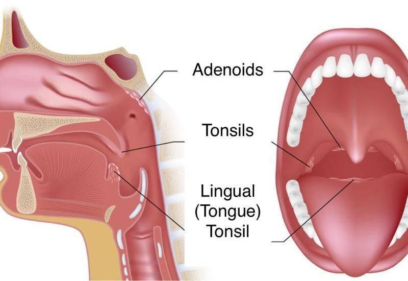 Лечение тонзиллита и ангины у ребенка