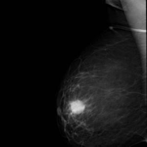 Лечение народными средствами фибромиома молочной железы