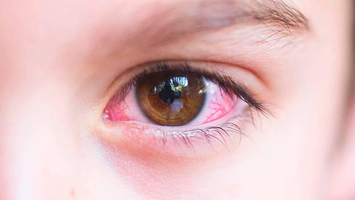 Тактика лечения аллергического конъюнктивита у взрослых