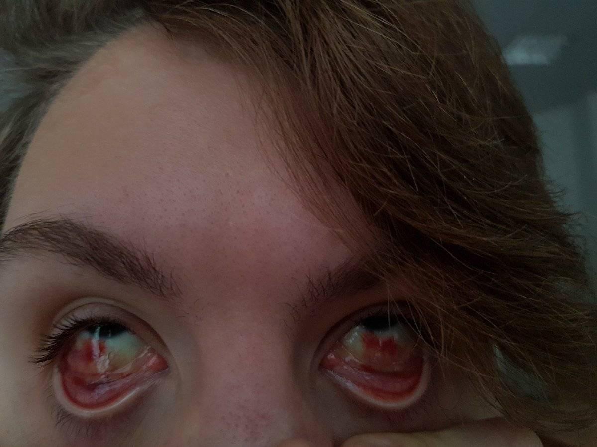 Если лопнул сосуд в глазу: что делать и как лечить