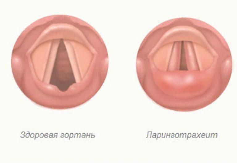 Ларингит у детей: лечение по методике доктора комаровского