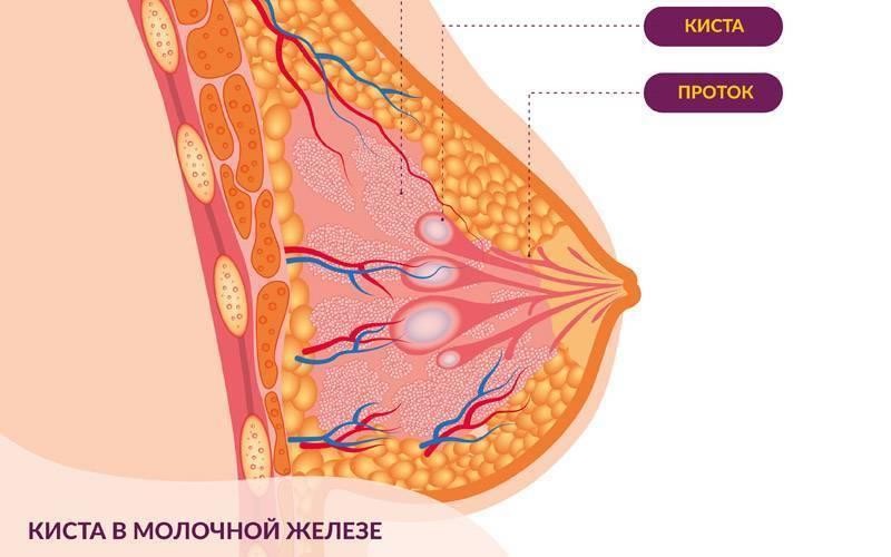 Кисты молочной железы: что это такое, как лечить