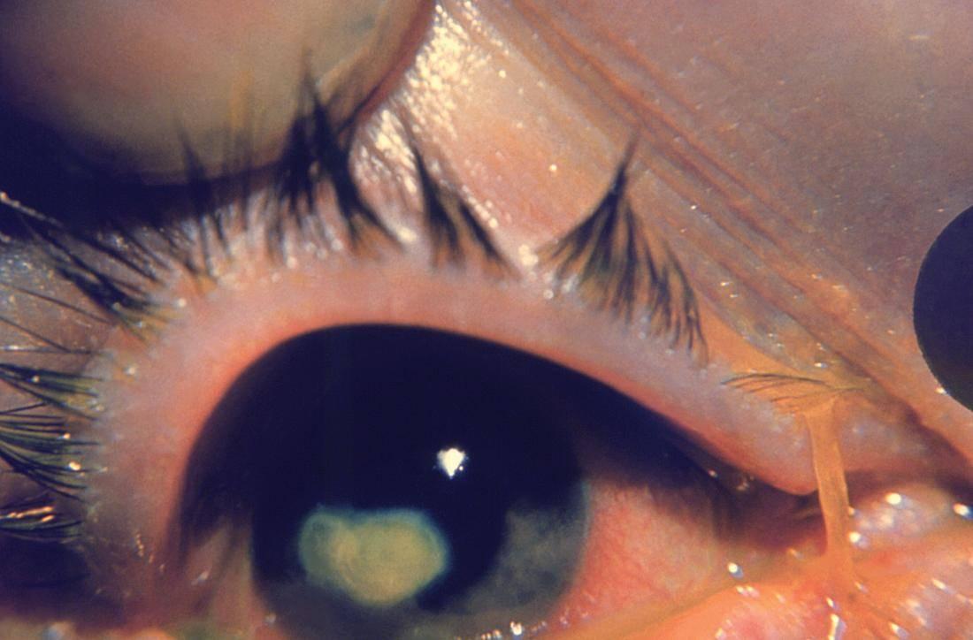Черная точка в глазу, которая не исчезает