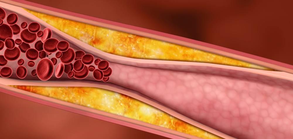 Возникновение и развитие атеросклероза при сахарном диабете