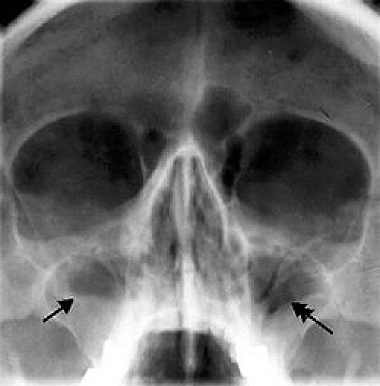 что такое пневматизация пазух носа