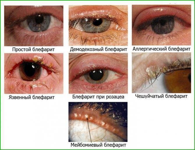 Демодекозный блефарит: симптомы и особенности удаления паразита