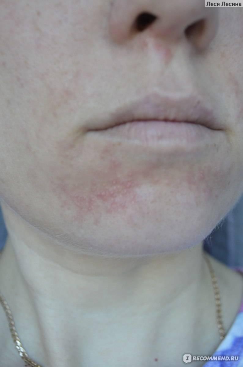 мази от периорального дерматита