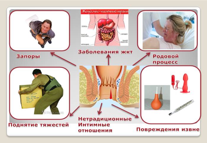 Причины геморроя, признаки, симптомы и лечение