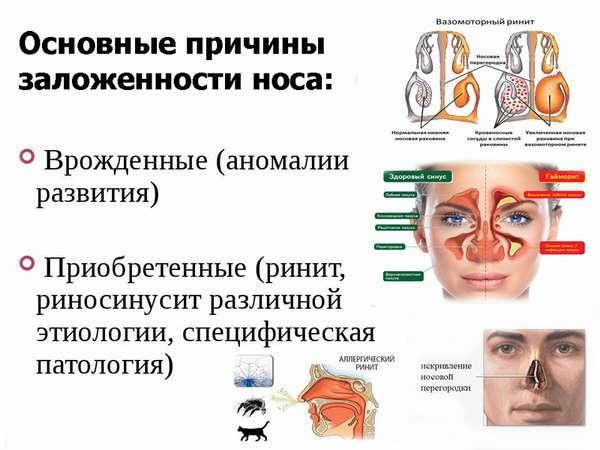 причины заложенности носа