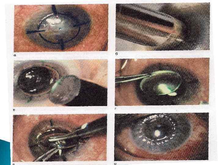 Лейкома роговицы глаза