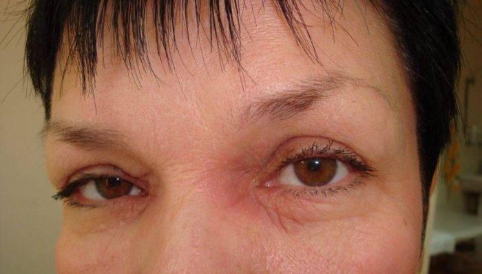 Псориаз на глазах как лечить