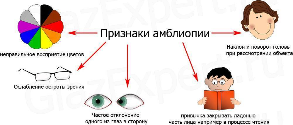 Больше он не будет бездельничать! лучшее лечение синдрома «ленивого глаза»