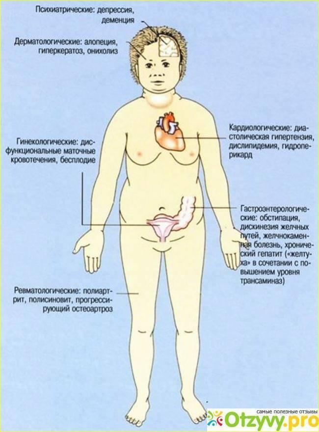 Аутоиммунный гипотиреоз: симптомы, причины, диагностика, лечение, диета и образ жизни