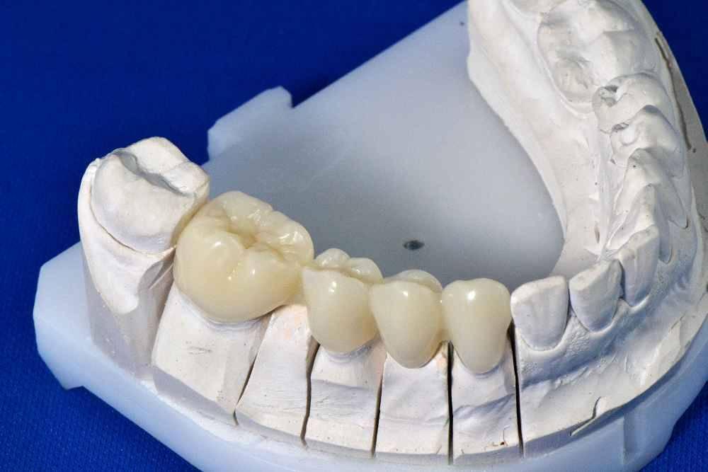 Несъемные зубные протезы – виды и цены