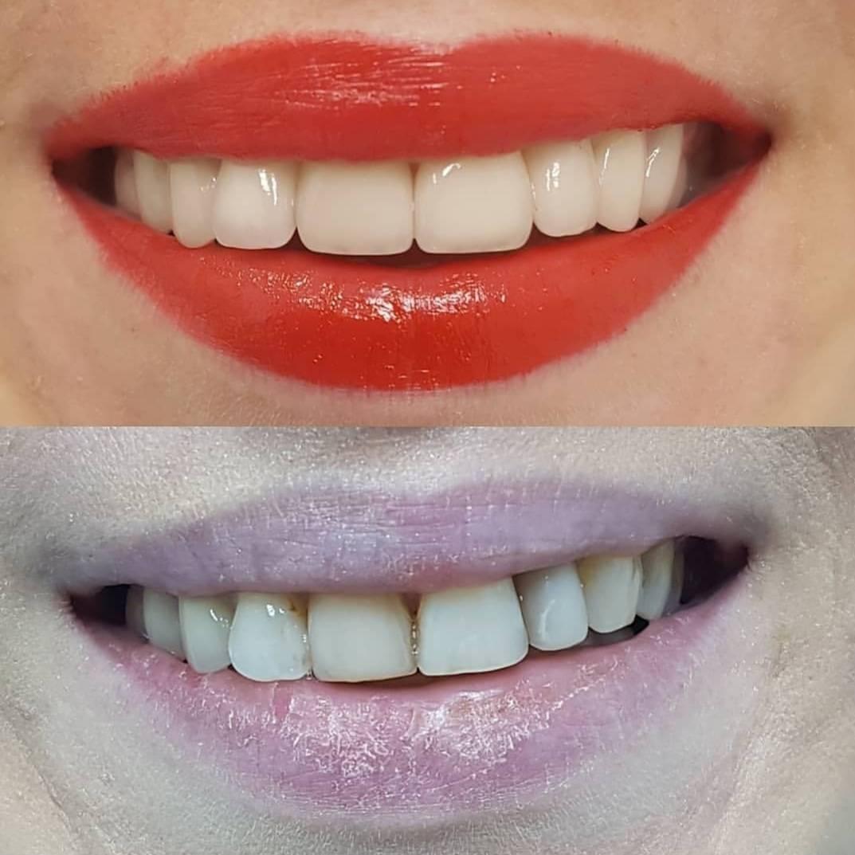 Реставрация зубов светоотверждаемыми материалами