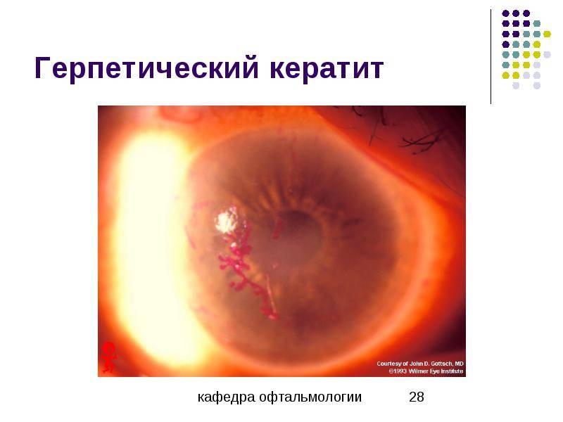 Герпетический кератит глаза. первичный, стромальный, метагерпетический дисковидный кератит– симптомы, лечение