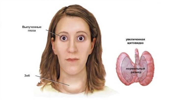 Базедова болезнь (диффузный токсический зоб) - причины, симптомы, признаки. диагностика и лечение патологии. осложнения и последствия. профилактика и прогноз