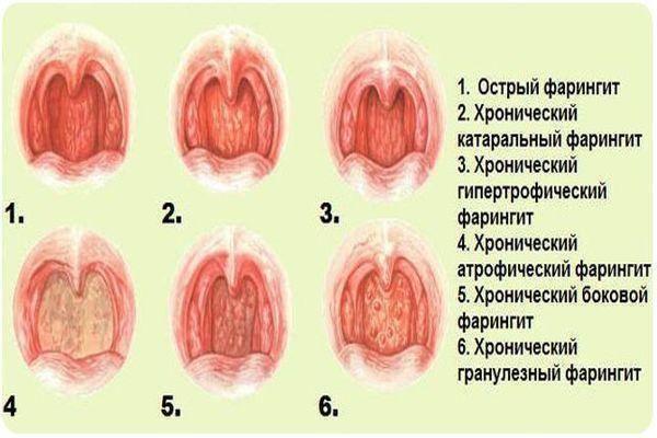 Как вылечить атрофическую форму фарингита
