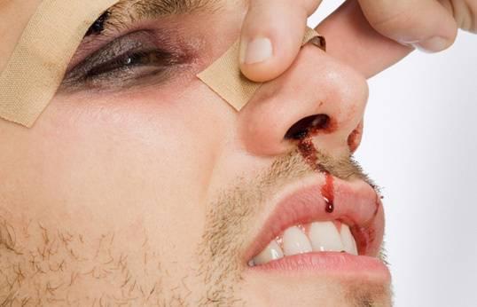 Ушиб носа: симптомы, что делать, лечение