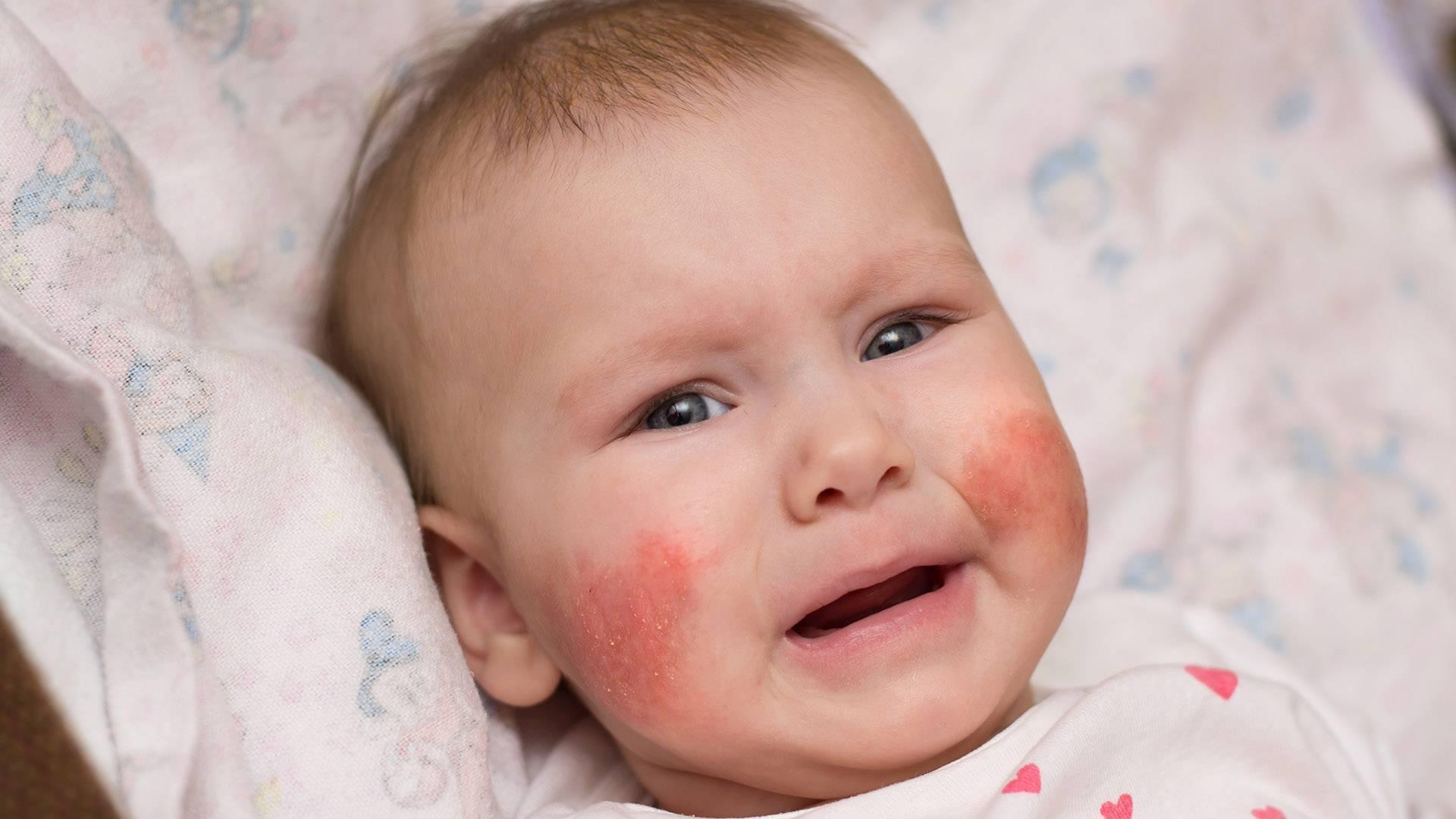 дерматит у ребенка в 4 года