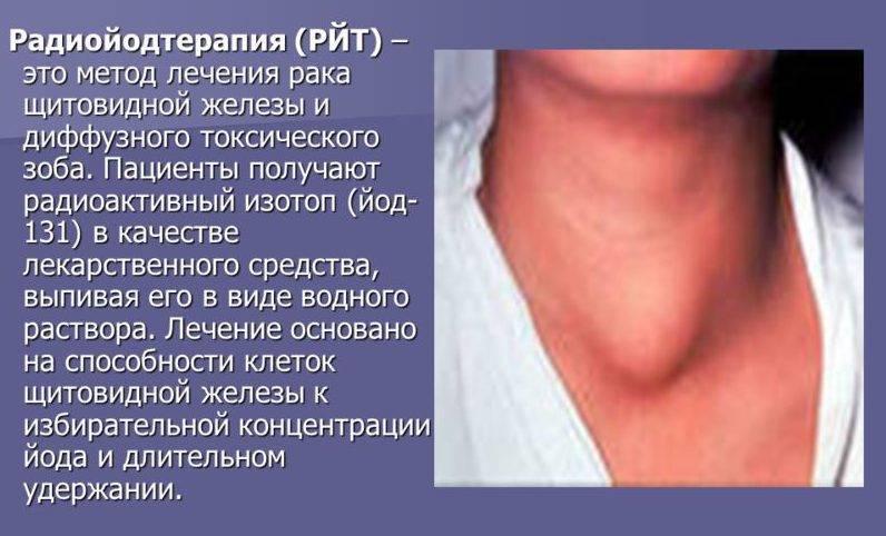 токсическая аденома щитовидной железы лечение