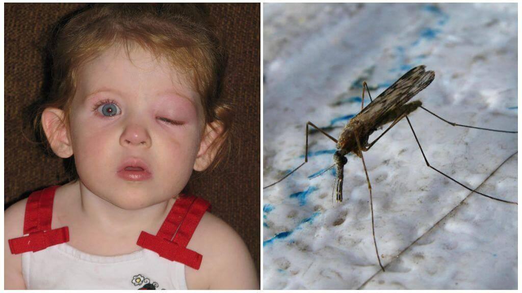 укусил комар в глаз ребенка что делать