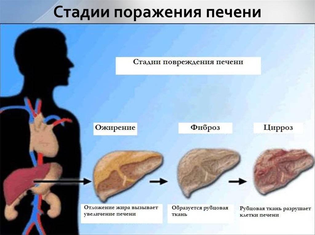 цирроз печени начальная стадия