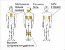 Принцип действия горчичных носков при простуде: правила применения и противопоказания