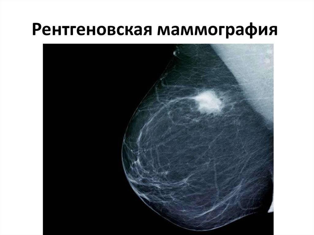 маммография результаты норма