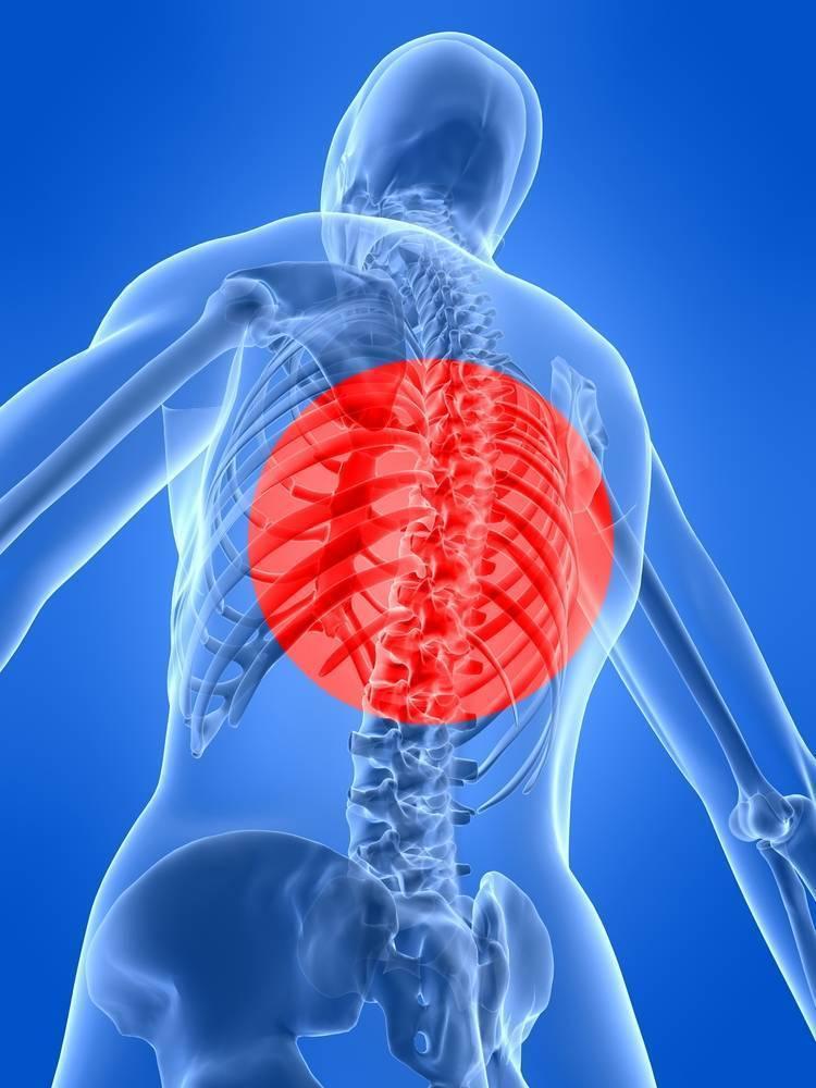 невралгия грудной клетки
