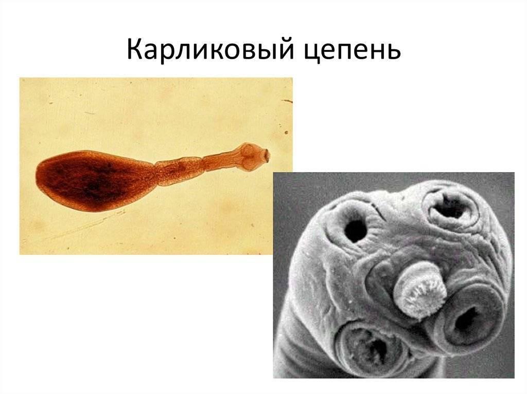 Крысиный цепень: пути заражения, симптомы и лечение | все о паразитах