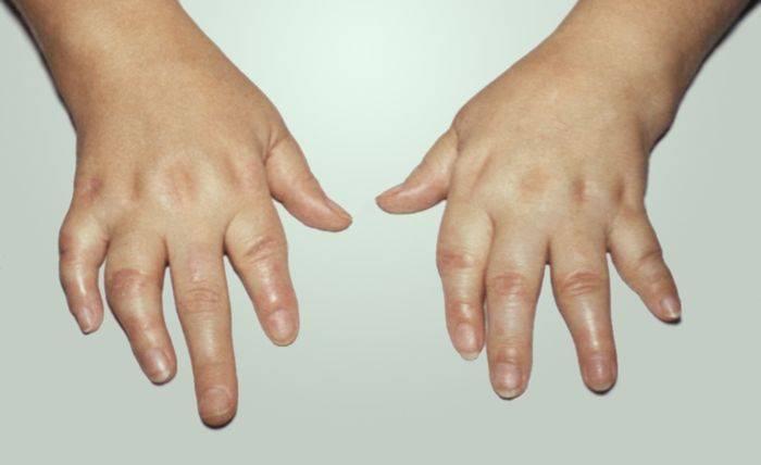 как псориаз влияет на суставы