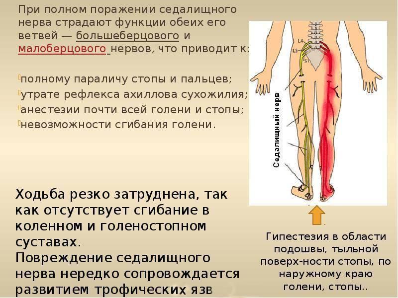 Седалищный нерв - симптомы, лечение, лекарства и уколы