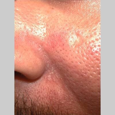 Перианальный дерматит: фото, симптомы, лечение