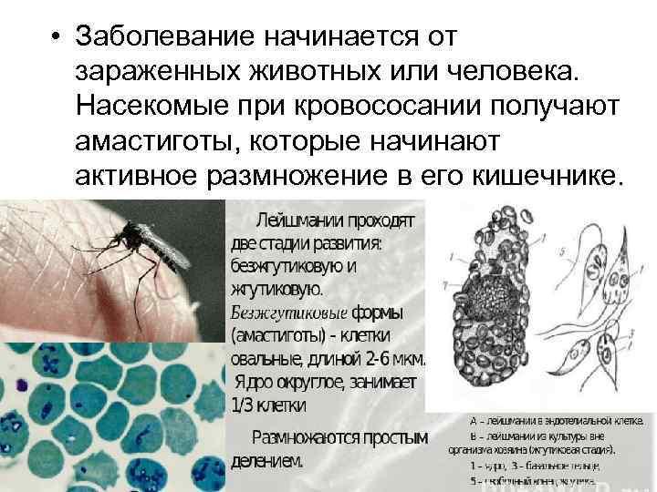 Симптомы и лечение протозойных инфекций