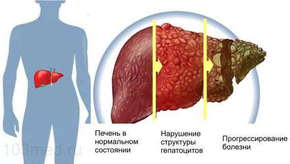 Сколько можно прожить с циррозом печени