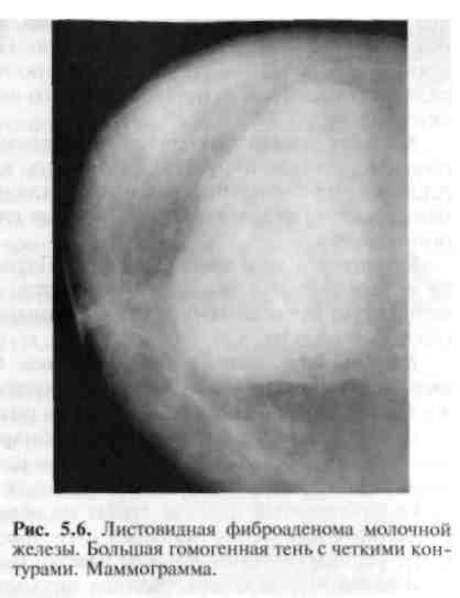 Листовидная фиброаденома молочной железы: симптомы, диагностика и лечение