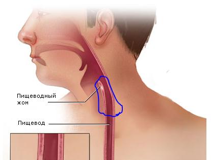 При нажатии болит горло ниже кадыка