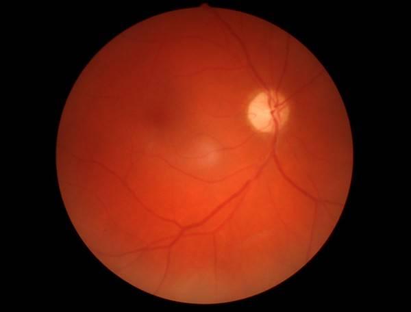 частичная атрофия зрительного нерва инвалидность