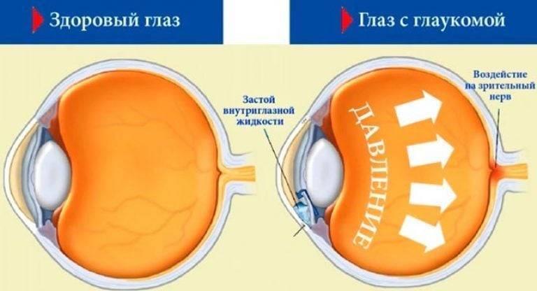 физкультура при глаукоме