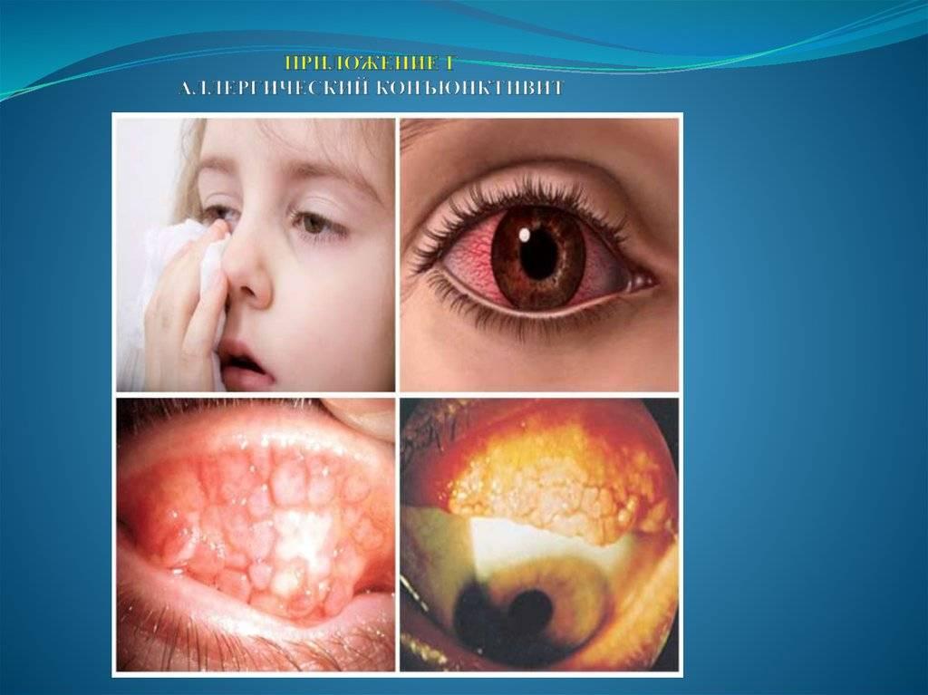 Конъюнктивит и температура у ребенка (простуда, орви): лечение