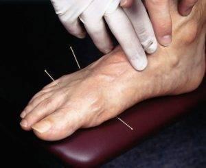 Лечение нейродермита